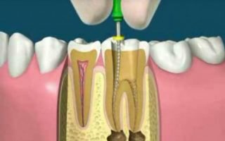 https://www.toothsignature.com/wp-content/uploads/2015/11/root-canal-treatment-320x200.jpg
