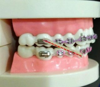 penggunaan elastic rubber band class III