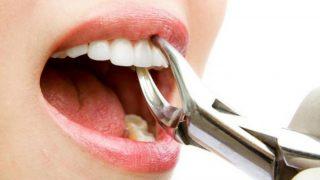 cabut gigi